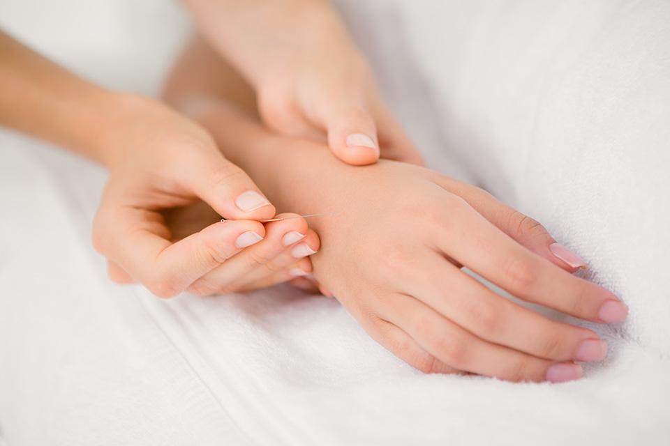 Acupuntura nas doenças inflamatórias intestinais